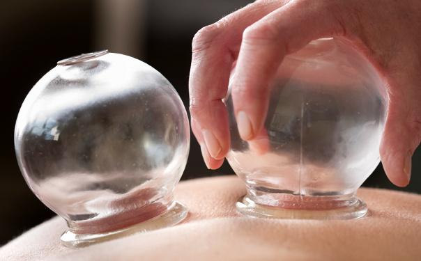 Coppettazione - Studio di Massaggio Tuina - Ancona